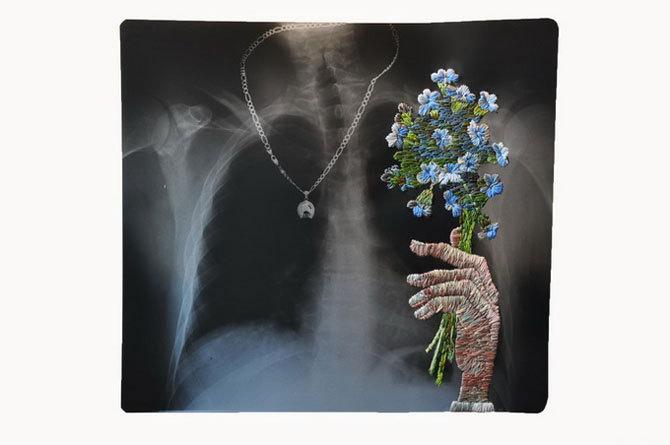Вышивка по рентгену