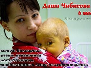 благотворительный аукцион, благотворительность, помощь ребенку